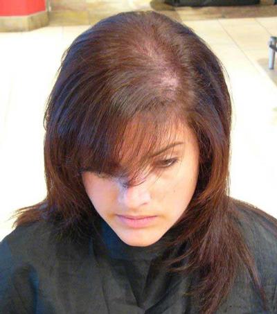 ریزش مو شدید در زنان