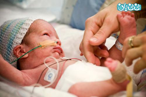 نوزاد نارس چه ویژگی هایی دارد؟
