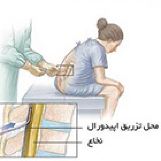 تسکین درد زایمان، اپیدورال مناسب است؟