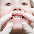 دندان شیری پوسیده کودک، لازمه درمان بشه؟