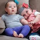 علائم بیماری ام اس در نوزادان