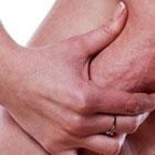 سلولیت پوست در زنان، درمان قطعی دارد؟