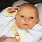 زردی در نوزادان، حتما باید بستری بشه؟
