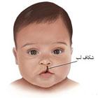 شکاف لب نوزاد، علتش چیست؟