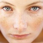 درمان لک پوست، مثل آب خوردن