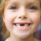 سلامت دهان و دندان کودکان، مراقبت لازمه؟