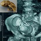 بارداری خارج از رحم، پدیدهای باورنکردنی