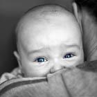 بسته بودن مجرای اشک در نوزادان