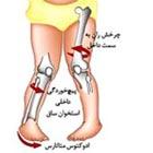 انحراف پا به داخل در کودکان، علت