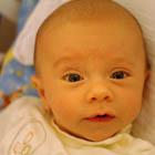 زردی نوزاد، نگرانی والدین