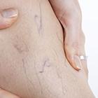 واریس بارداری، پیشگیری از چه راهی؟