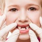 لق شدن دندان شیری کودک، یکی شو بلعیده!