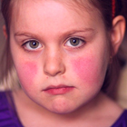 بیماری پنجم در کودکان، علت و درمان