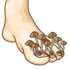 قارچ پا در کودکان، خارش کلافش کرده