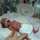جلوگیری از تولد نوزاد نارس، ویتامین ضروری