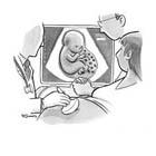 سونوگرافی چهار بعدی جنین، توضیحات لازم