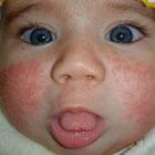 درمان اگزما در نوزادان، راهکار