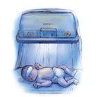 علت زردی نوزادان در بدو تولد