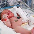 علت فشارخون در نوزادان، چیست؟