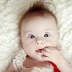 تشخیص سندروم داون در نوزادان، علائم