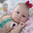 بیماری قلبی در نوزادان، علت