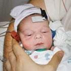 دلایل کم شنوایی نوزادان، قابل درمان است؟