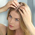 درمان ریزش مو بعد از زایمان
