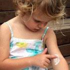 درمان اگزما در کودکان