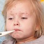 علائم سرخجه در کودکان