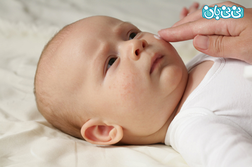 علت جوش صورت نوزادان، راهکار درمان