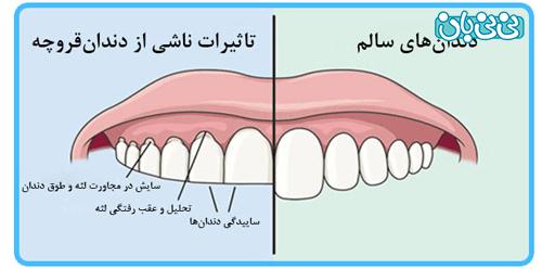 دندان قروچه کودک در خواب، علت چیست؟