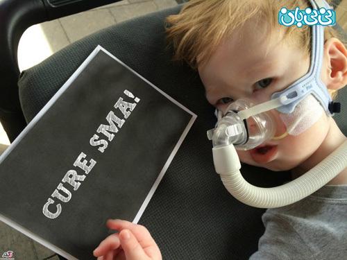 علائم بیماری اس ام ای، کودکانی که مبتلا می شوند