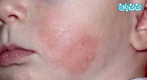 اگزمای پوستی در نوزادان، درمان