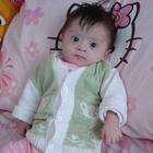 سندروم داون در نوزادان، ویژگیهای ظاهری و خصوصیات اخلاقی