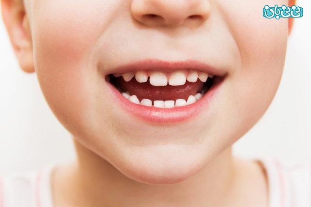 افزایش رشد کودک، ویتامین ها را جدی بگیرید