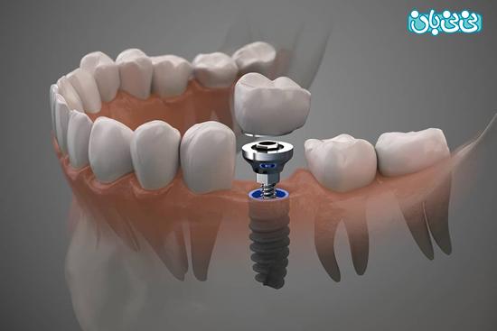 ایمپلنت دندان فوری چیست و قیمت آن چقدر است؟