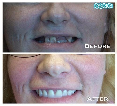 قیمت پروتز دندان مصنوعی و انواع آن