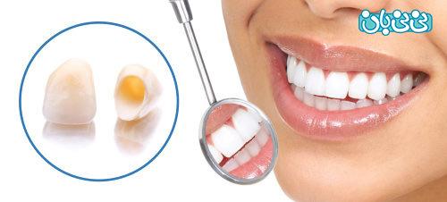 انواع سرامیکهای دندانی و کاربردهای آنها را بشناسید