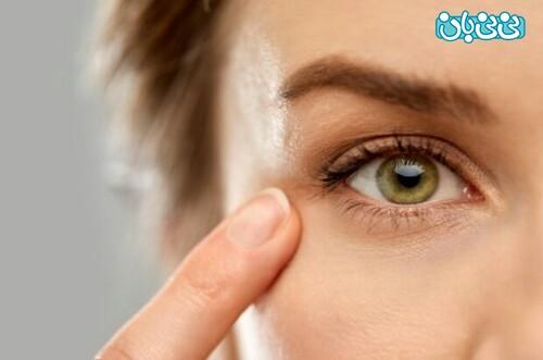 درمان افتادگی با لیزر و هزینه آن