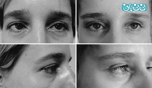 قبل و بعد از عمل لیفت چشم
