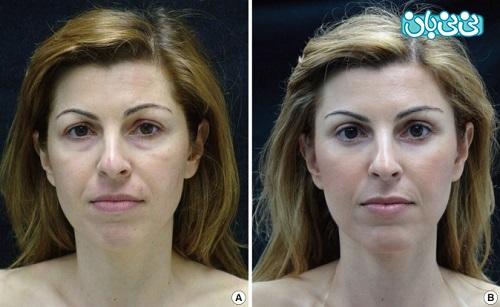 قبل و پس از لیفت چشم