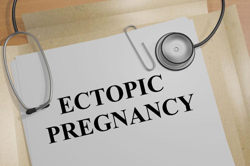 علائم بارداری خارج از رحم
