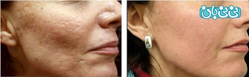 درمان جای جوش با لیزر، انواع روش و مراقبت بعد از آن