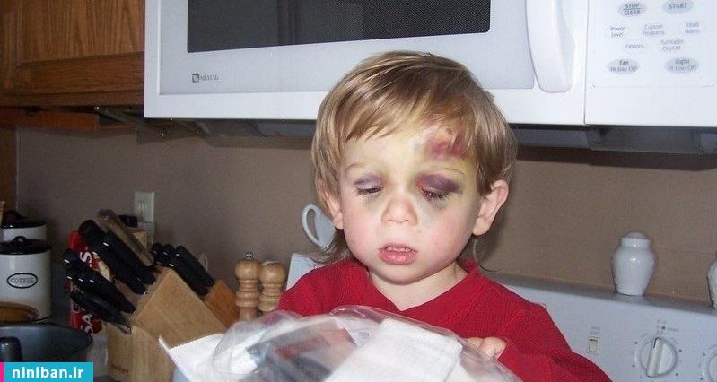 درمان بیماری هموفیلی در کودکان