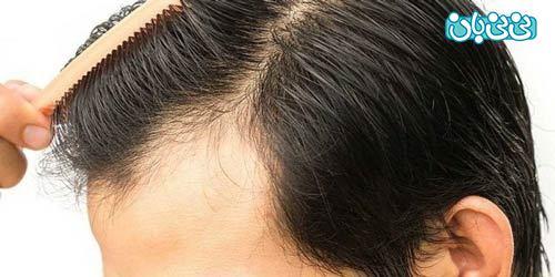 بهترین کلینیک تخصصی کاشت مو طبیعی در تهران