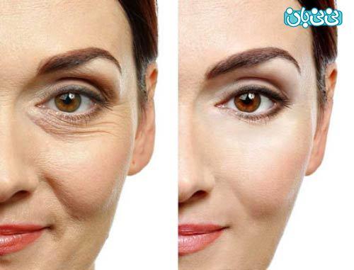 درمان و رفع چروک دور چشم با بوتاکس یا لیزر