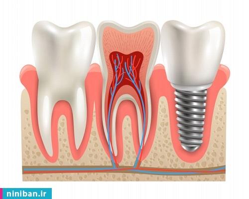 کاشت فوری دندان