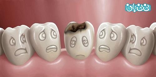 علت پوسیدگی دندان چیست