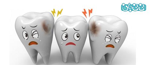 علل پوسیدگی دندان در جوانی - علت پوسیدگی دندان، بشناسید و پیشگیری کنید