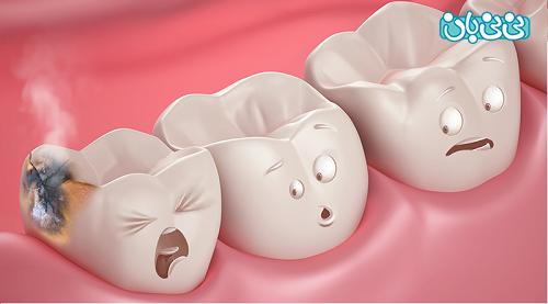 علت شایع پوسیدگی دندان - علت پوسیدگی دندان، بشناسید و پیشگیری کنید